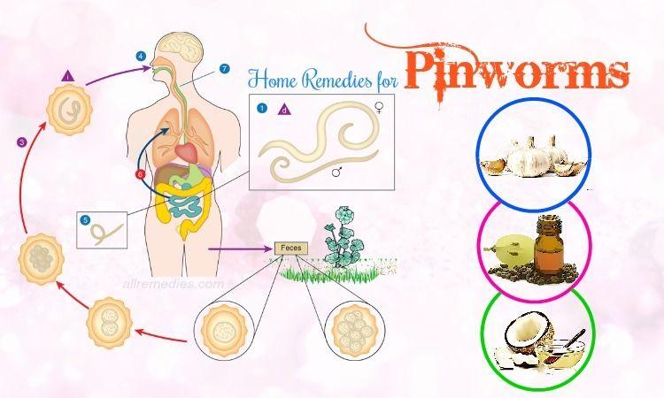 Enterobiasis signs and symptoms, Enterobiasis cdc Pinworm infectarea la copii