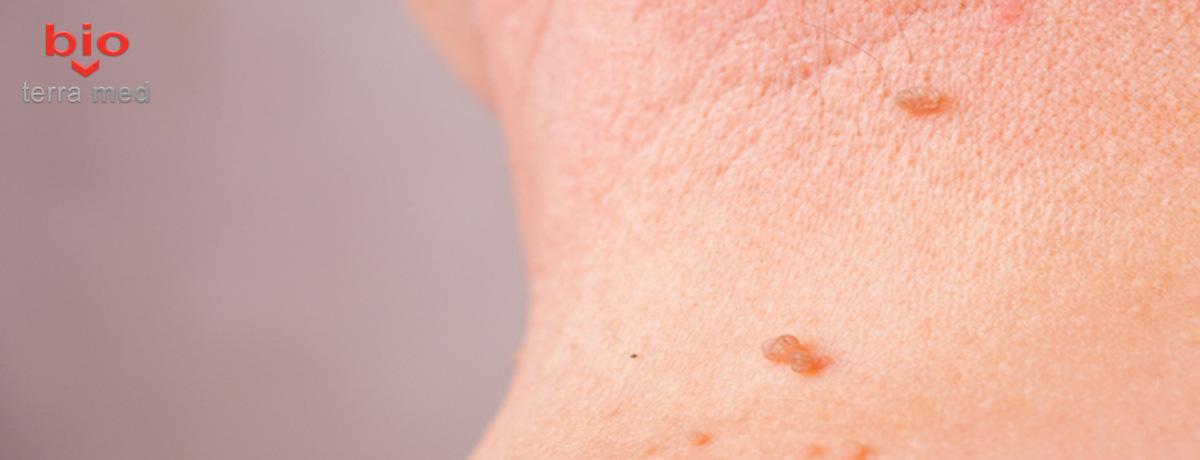 cum să tratăm papilomele pe piele
