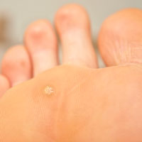 Wart foot image, Fotografie Closeup of foot with a infected wart placed under toes 73388419