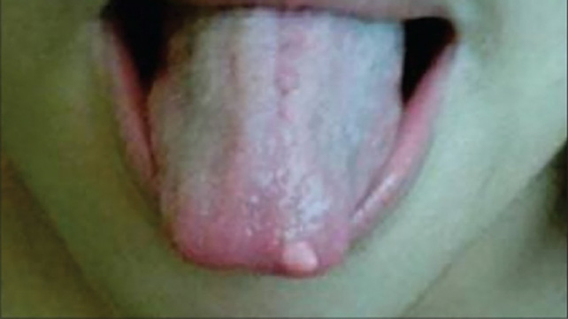 Papilloma tongue nhs, Papilloma in mouth nhs