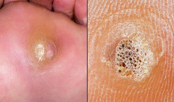Foot warts with black spots. Hpv warts on bottom of feet, Naturasil Natural Wart Remover 15mL