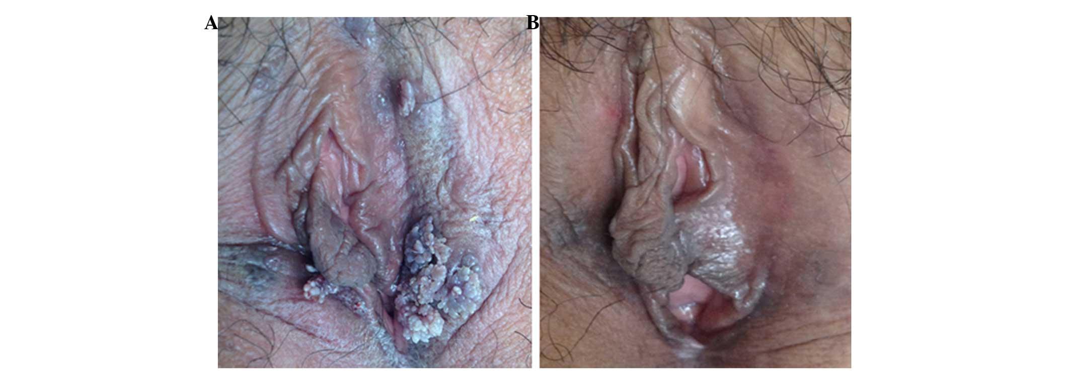 condilomul la o femeie doare papiloma virus femei