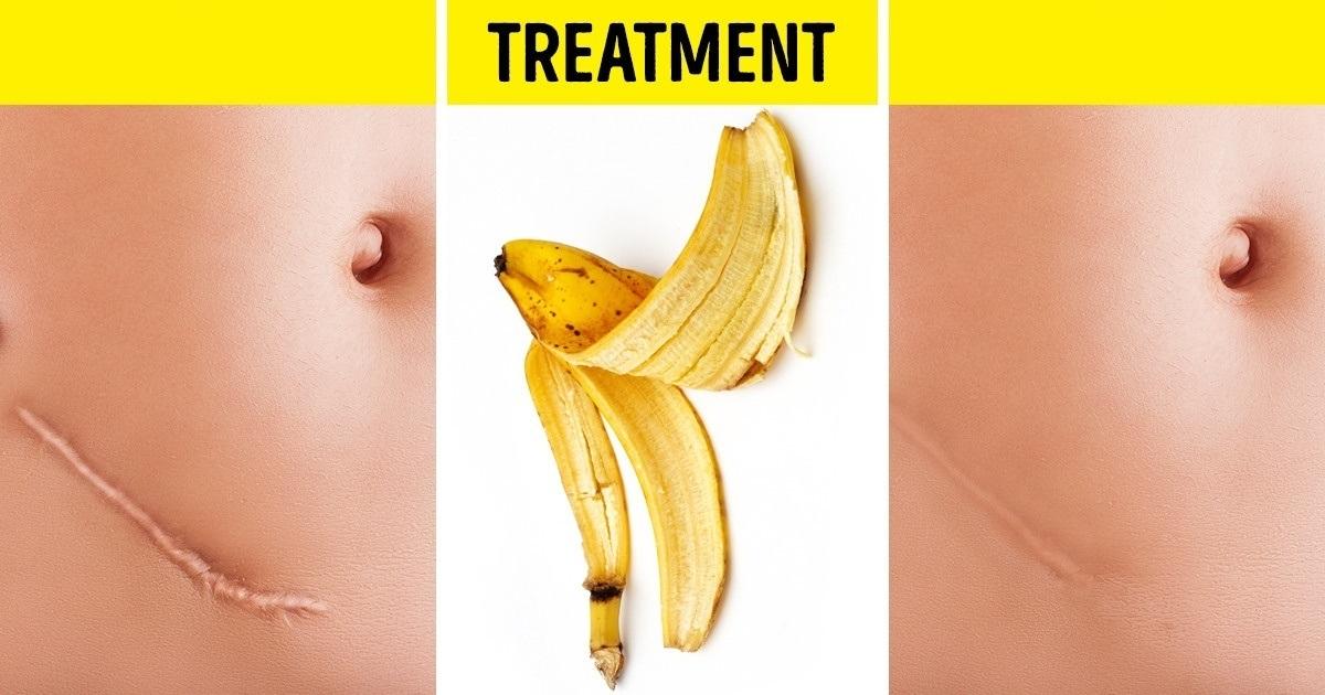 recomandări de tratament pentru giardioză copii parasiti de parinti