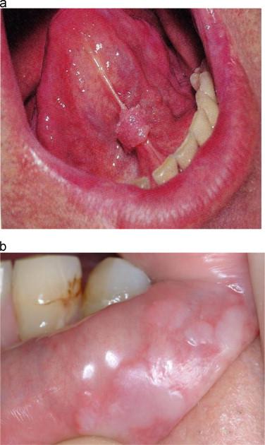 human papillomavirus under tongue
