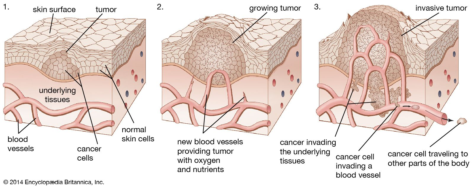 cancer benign tumour