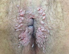 hpv condilomi ano analiza toxoplasma in sarcina