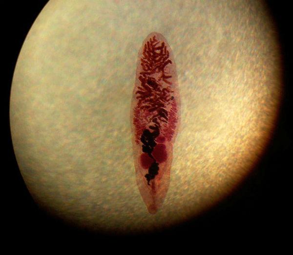 giardiază vezică biliară tablete medicamentoase parazite