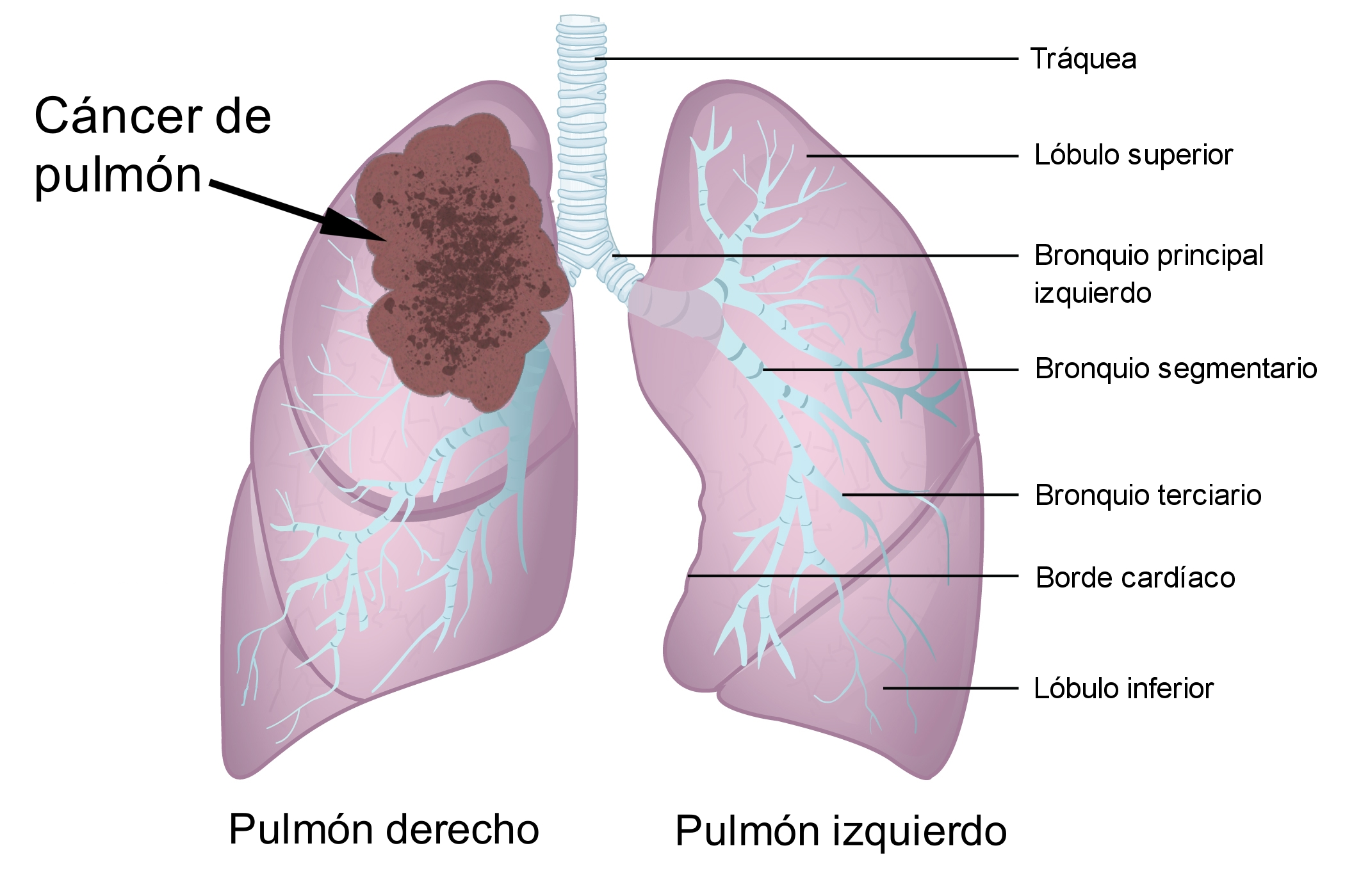 cancer neoplasia maligna