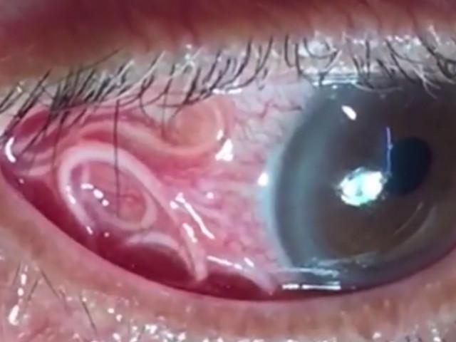 Picături de ochi parazite pentru oameni
