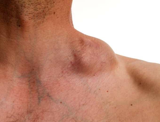 Cancer de hodgkin, Difteria – Corynebacterium diphteriae - Cancer linfatico hodgkin sintomas