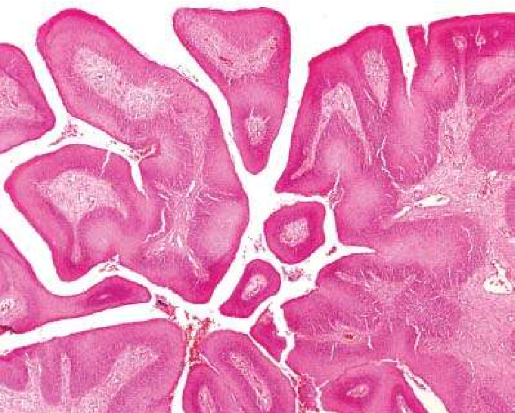 Giardia paraziti simptome - csrb.ro Paraziti giardia lamblia shqip