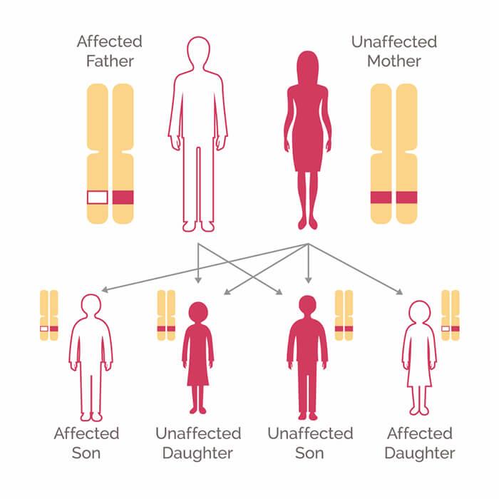 Blood cancer genetic link