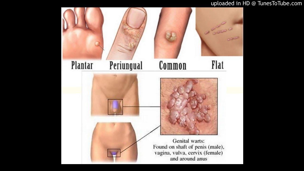 Negi Genitali - Simptome, Cauze, Diagnostic, Tratament + Poze - csrb.ro