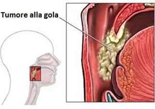 papilloma virus tumore maligno