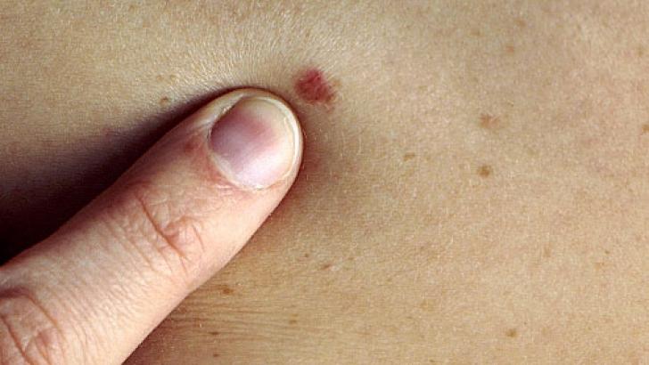 Cancer piele vindecat