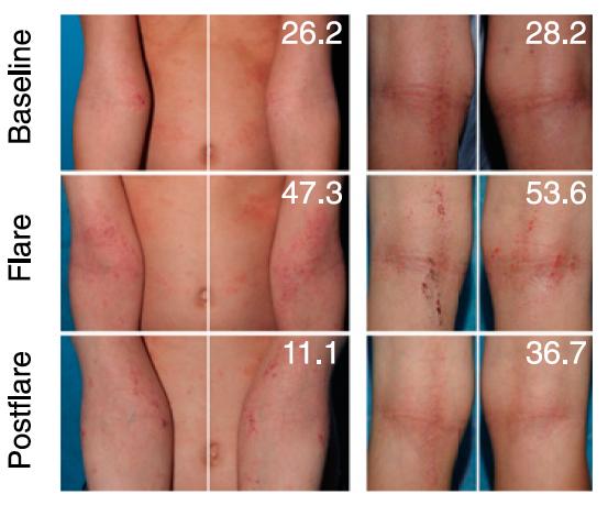 tipuri de ureaplasma în tratamentul femeilor condiloamele sunt localizate pe