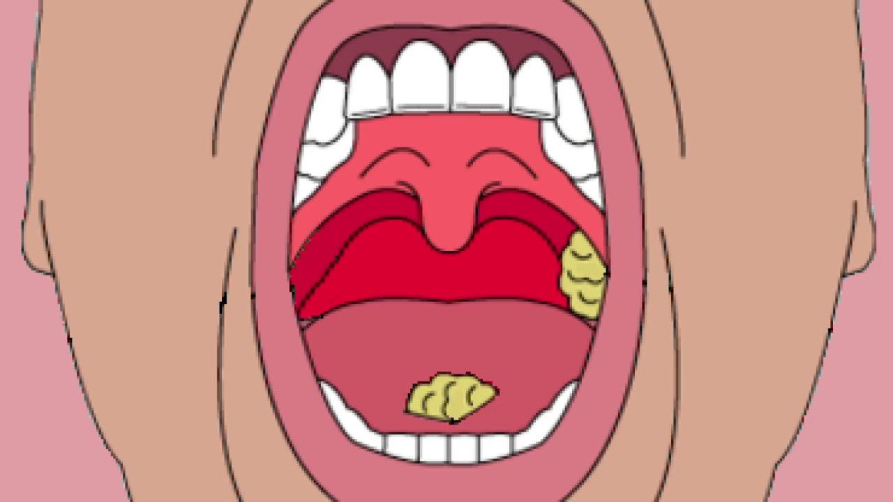 l anemie symptome cu condiloame, abdomenul inferior doare