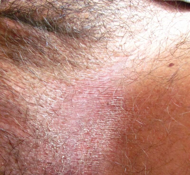 clotrimazolul ajută la verucile genitale