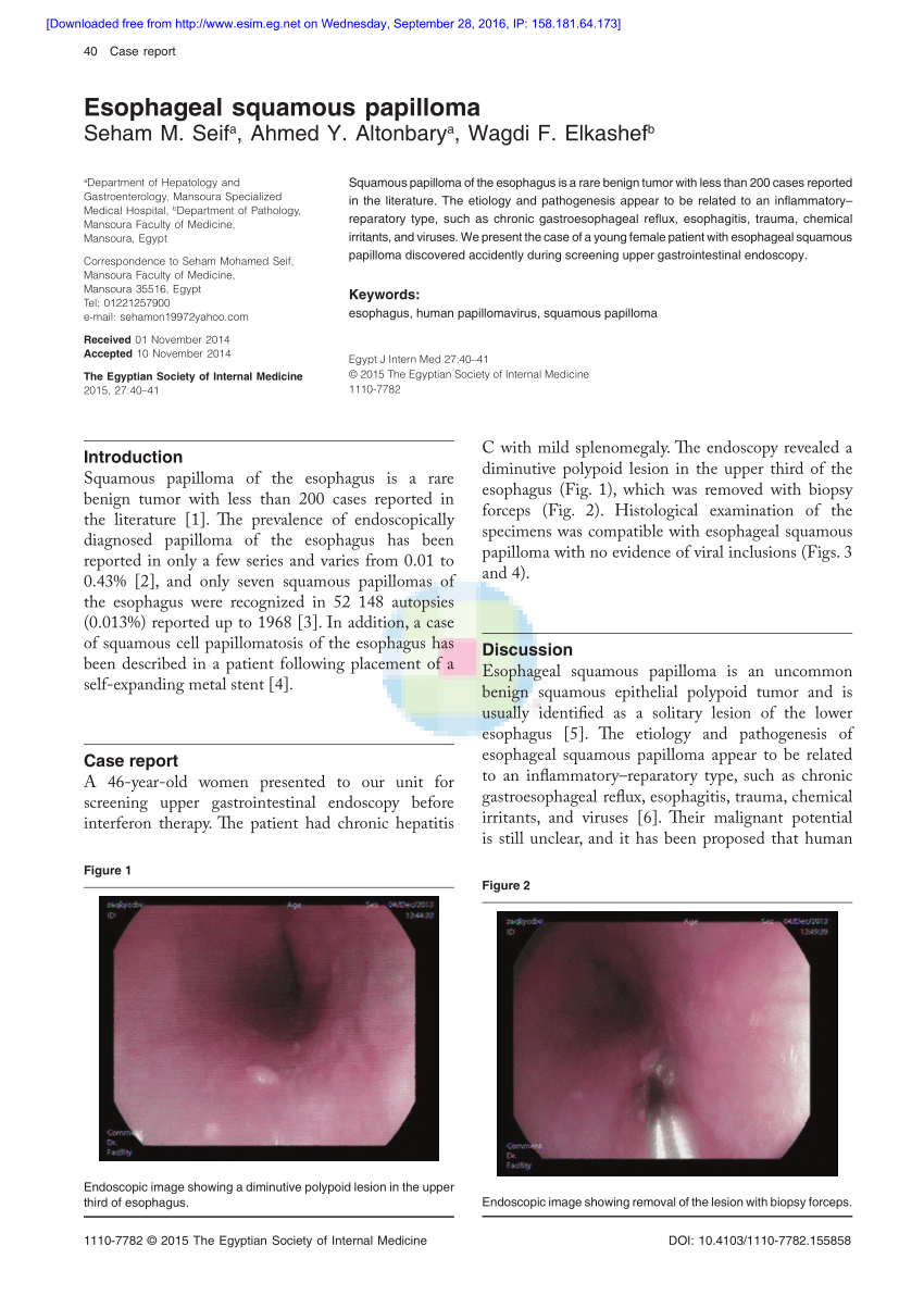Esophageal papilloma hpv, Squamous cell papilloma trasmissione del papilloma virus