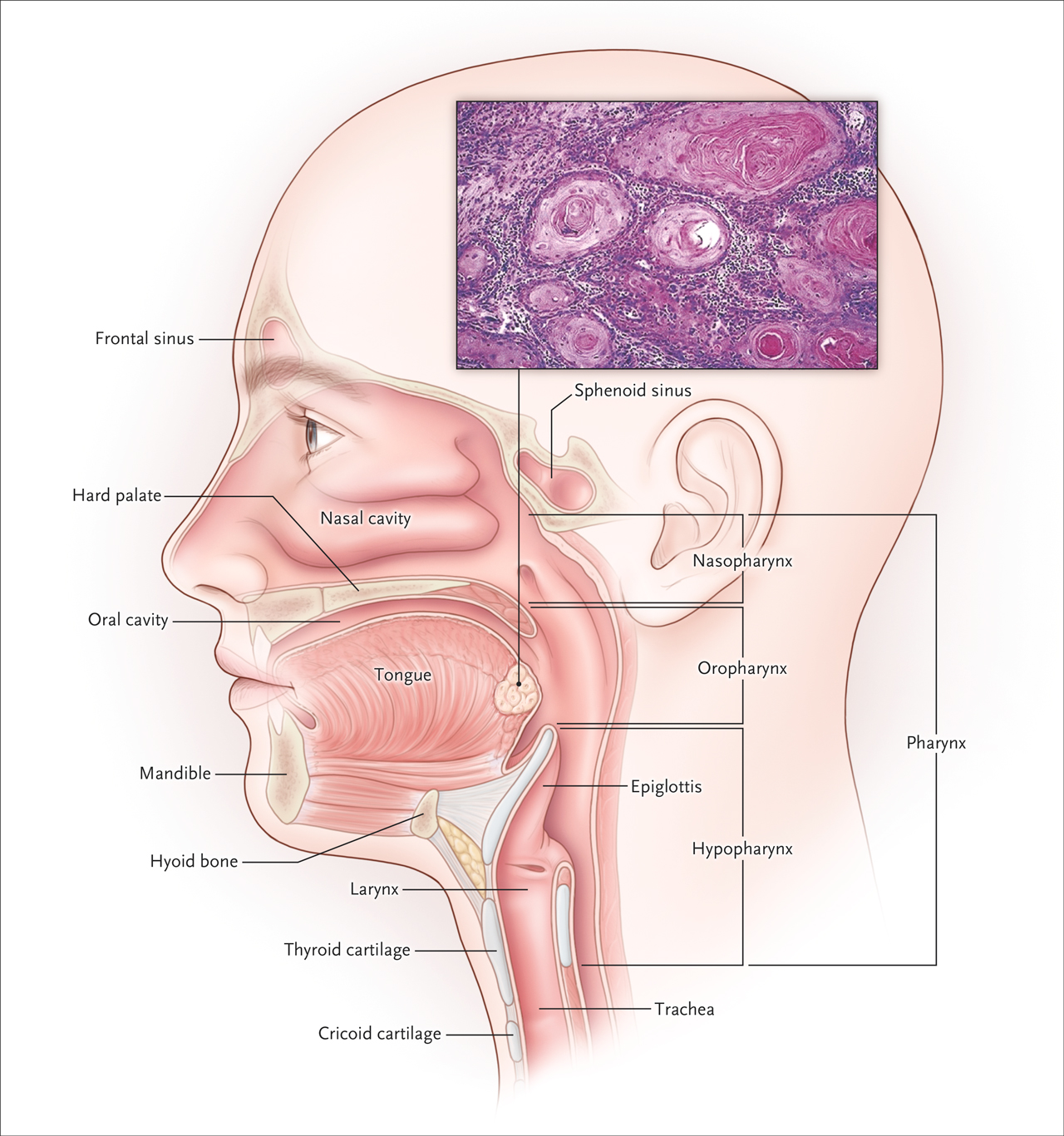 Hpv infection head and neck cancer