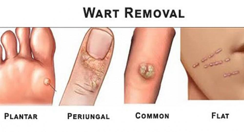 Does hpv type 16 18 cause warts - Hpv type 16 and 18 warts