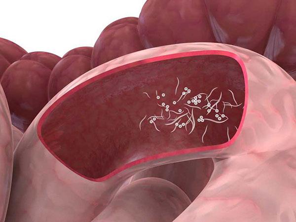 Sintomas de parasitos en ninos oxiuros, Oxabymasiw