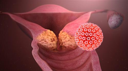 papillomas virus femme