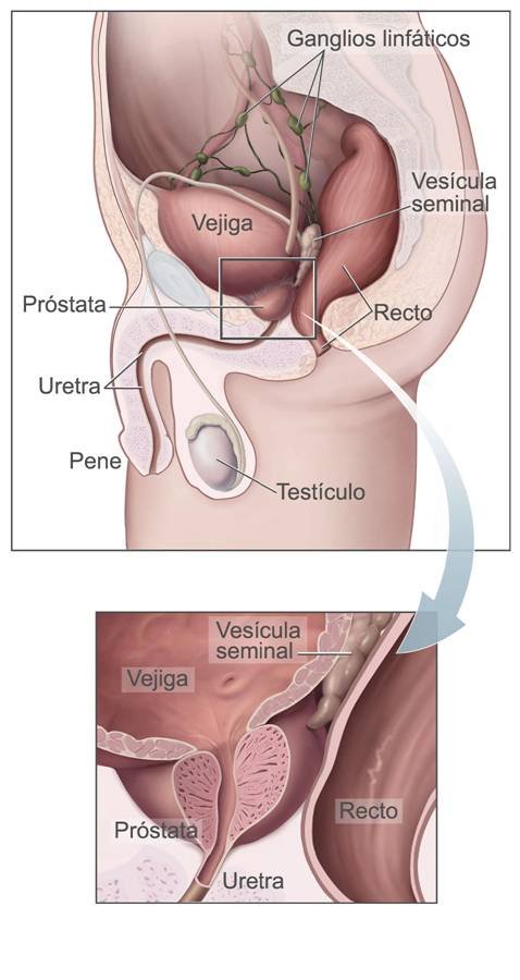 cancer de prostata definicion human papillomavirus vaccine drug