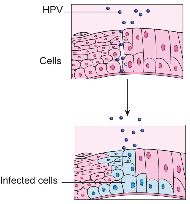 hpv wart areas