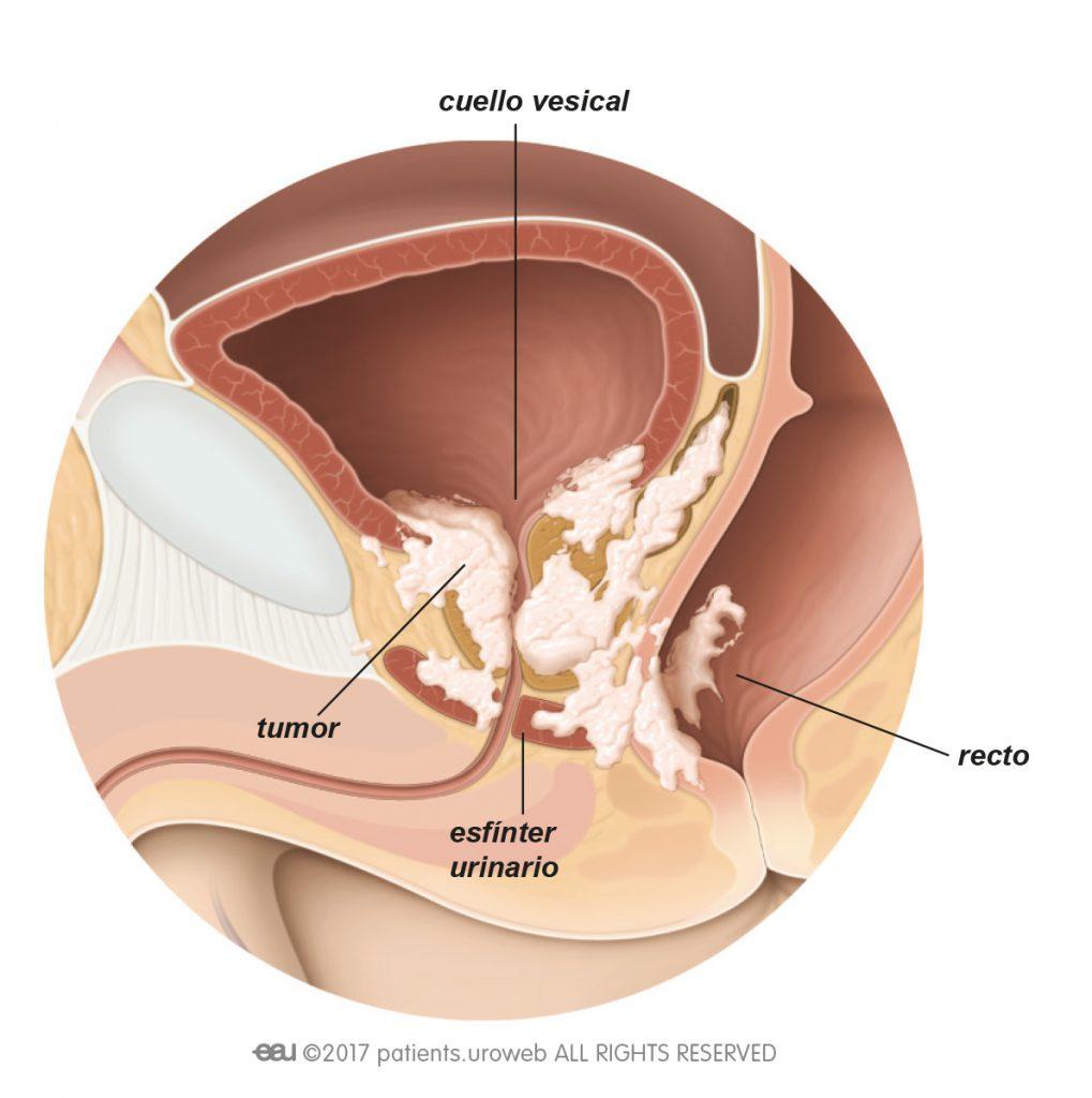 cancer cai urinare papillomavirus niveau 3