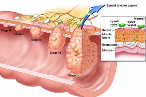 cancer colon liver tratamentul viermilor pancreatici