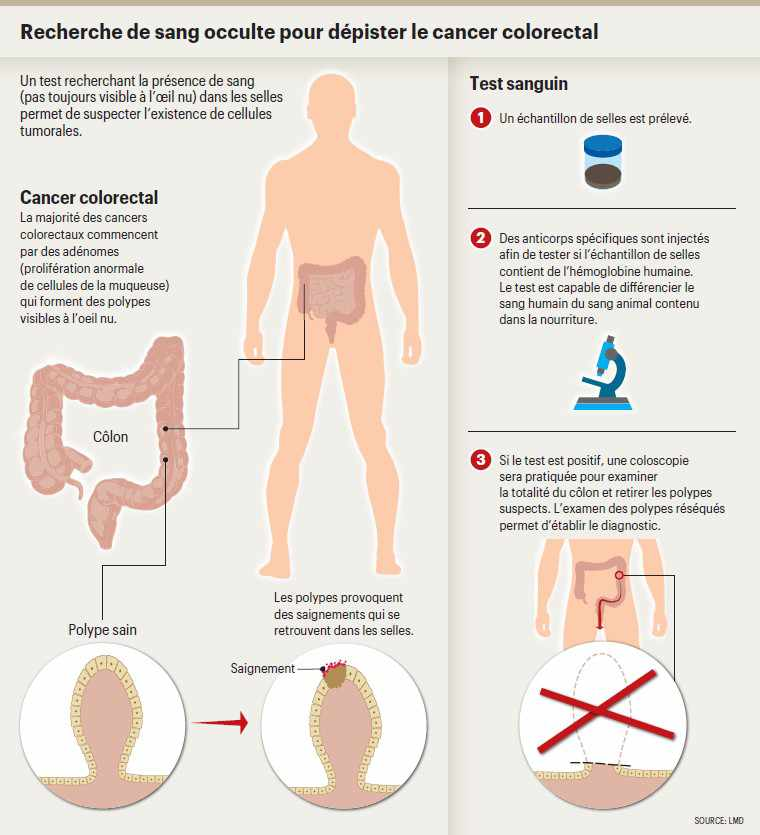 cancer colorectal et age
