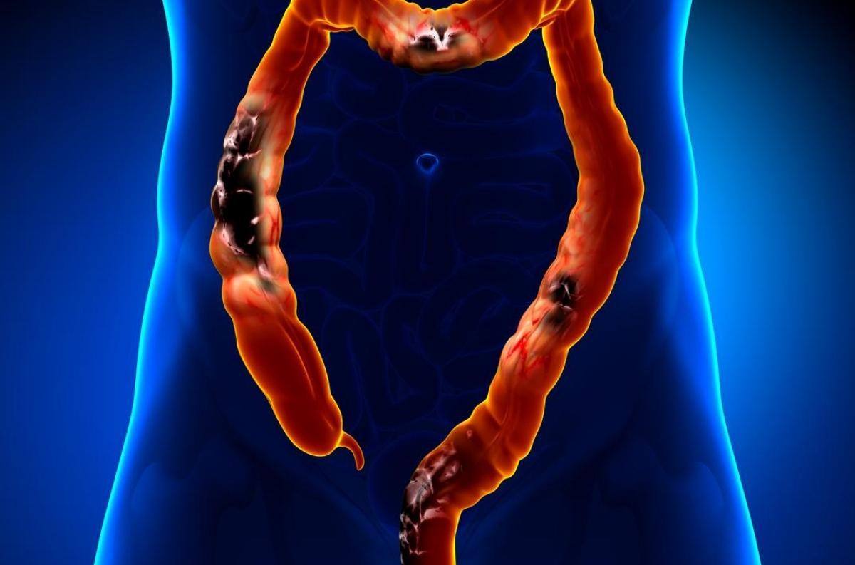 cele mai bune recenzii dermatologice endometrial cancer kras