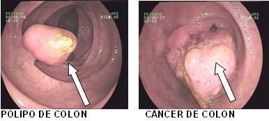 condiloame pe pereții uterului medicamente populare pentru viermi