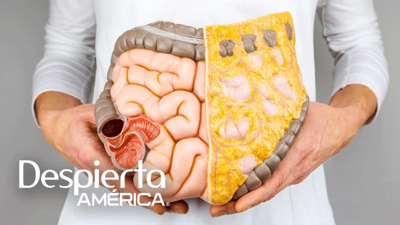 cancer de colon hombres sintomas paraziti cerebrali msn