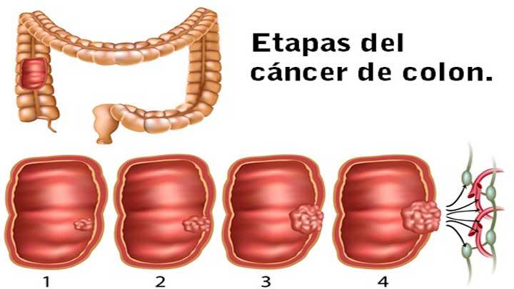 cancer de colon hombres sintomas helminths sunt medicamente pentru tratamentul simptomelor umane