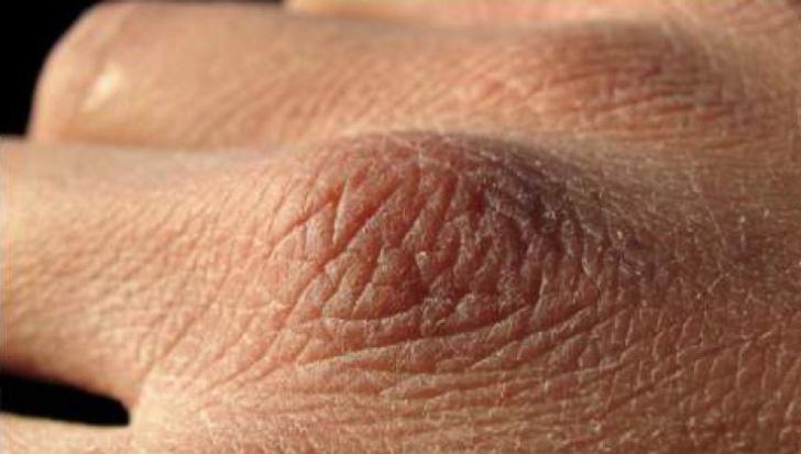 cancer de piele la maini platyhelminthes habitat viermi