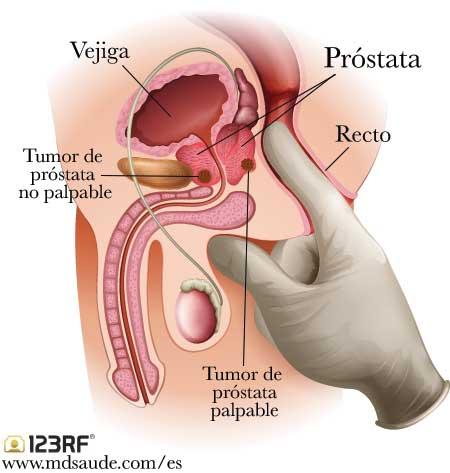 cancer de prostata consecuencias papillomavirus oncogene