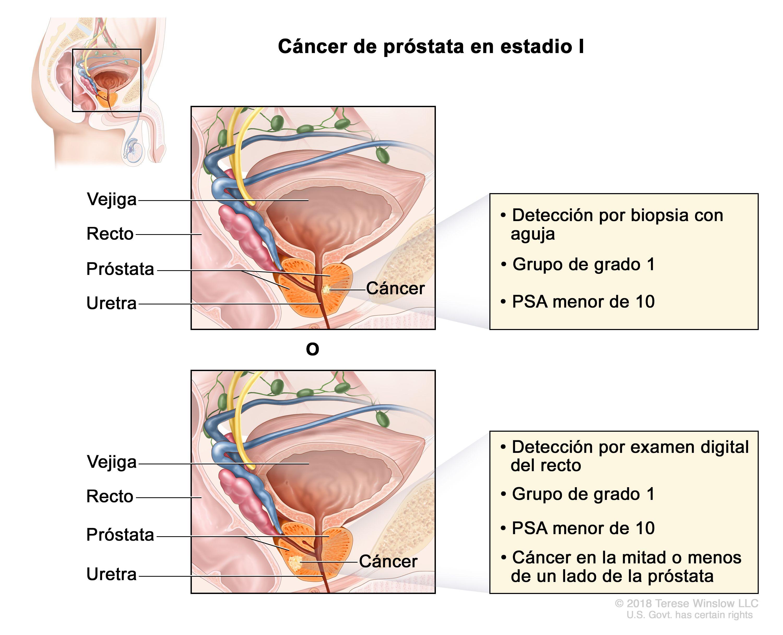 cancer de prostata nivel 6