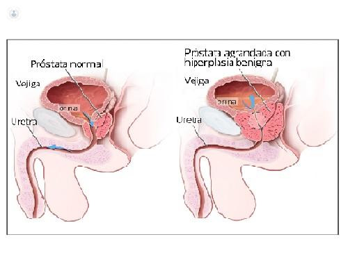 tratament cu mâncărime parazitară a pielii condiloamele recenzii unguent