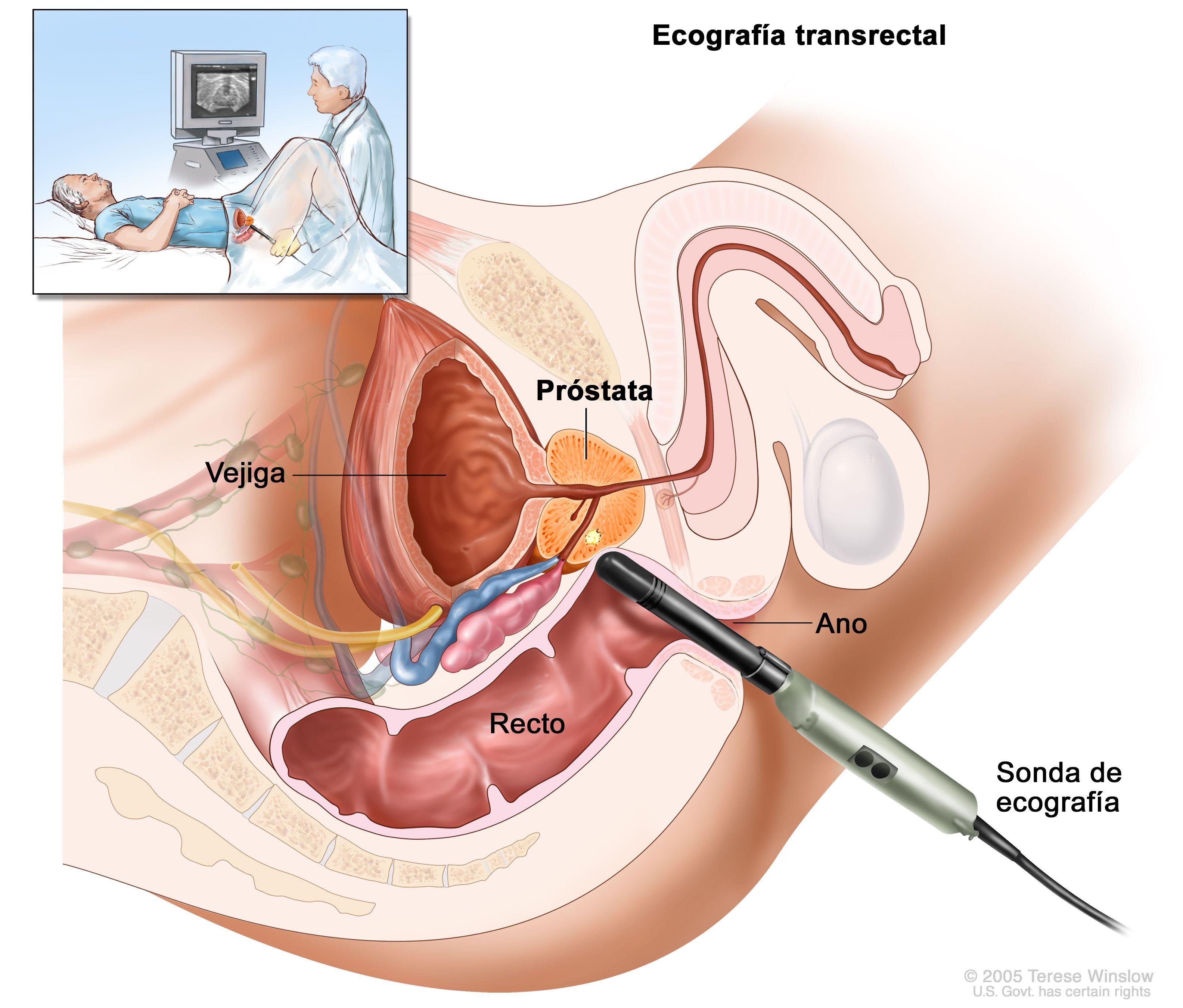 Examinarea RM multiparametrica a prostatei | Spitalul Monza