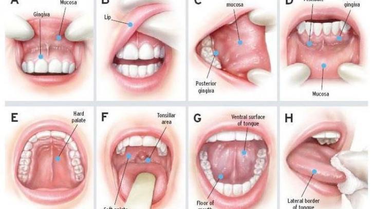 papillomavirus sur le nez cum este tratat virusul papilomului?