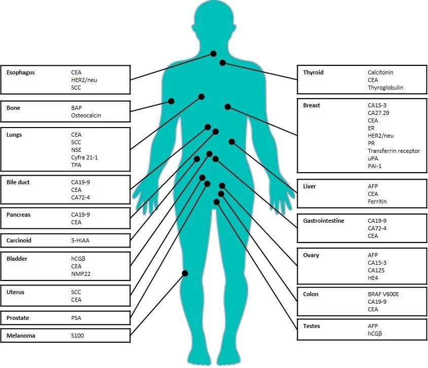 cele mai eficiente medicamente parazitare din organism