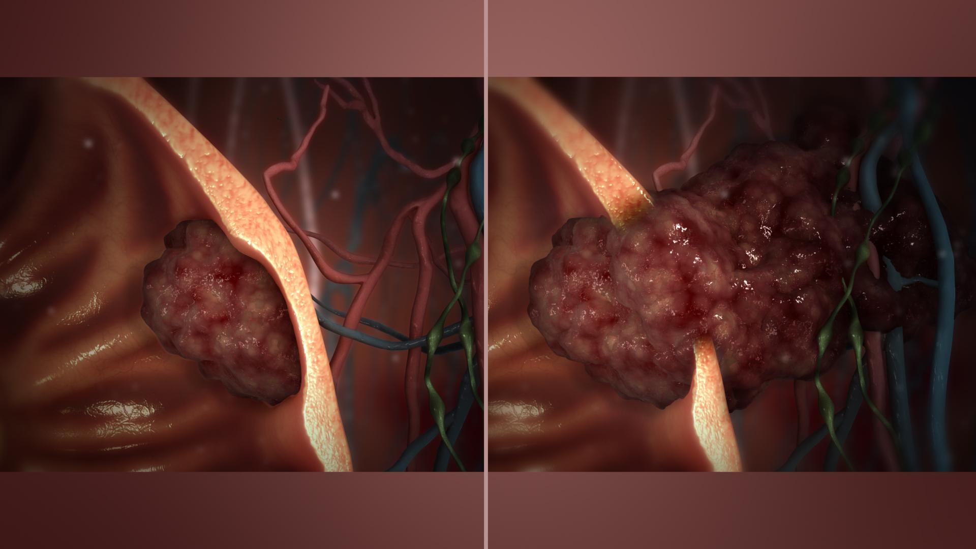 Care este diferenta intre cancer malign si benign? | csrb.ro