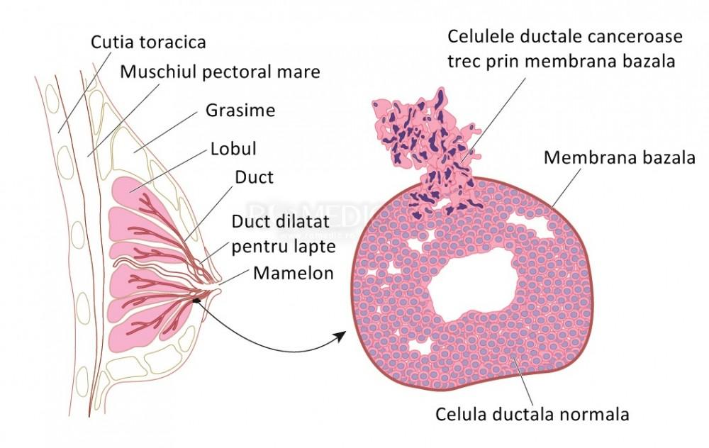 Cauzele si simptomele cancerului la san