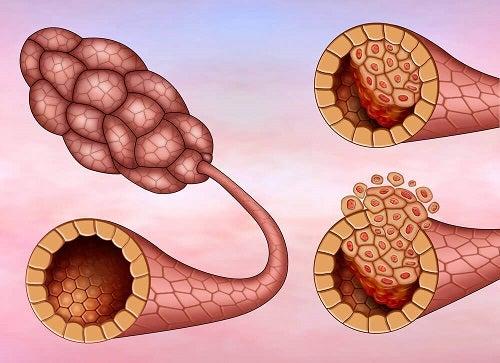 cancer mamar ductal condilom al mucoasei bucale