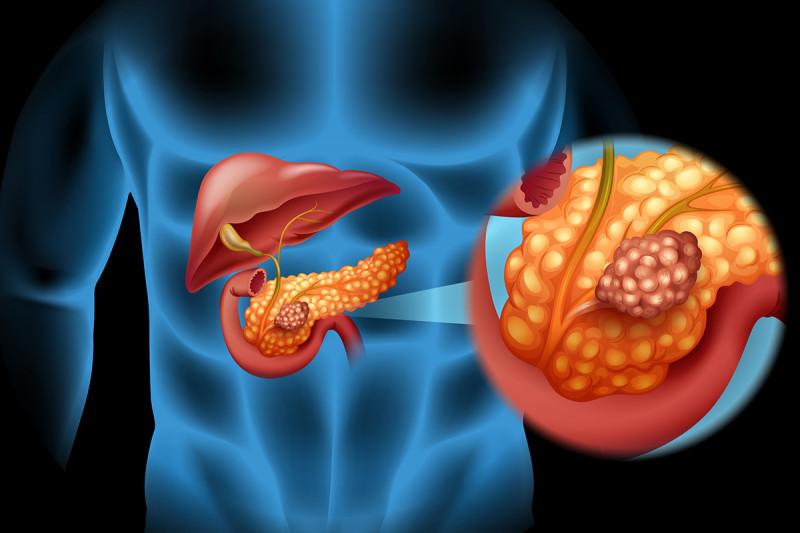 World Pancreatic Cancer Day | csrb.ro - Asociatia Romana pentru Patologia Pancreatica