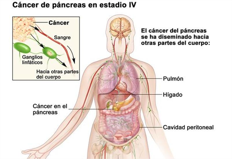 Cancer de faringe sintomas