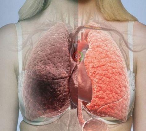 Cancer pulmonar (de plămâni) - Tot ce trebuie să ştii | Cancer