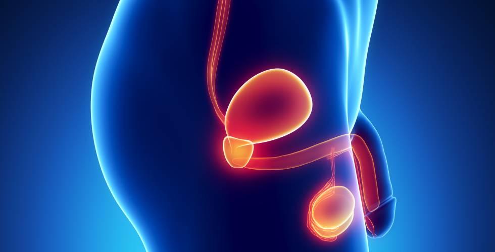 Este cancerul contagios? Cele mai frecvente mituri despre cancer, Cancerul de prostata se transmite